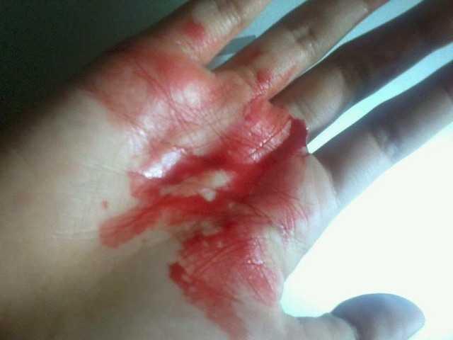приснилась кровь беременной