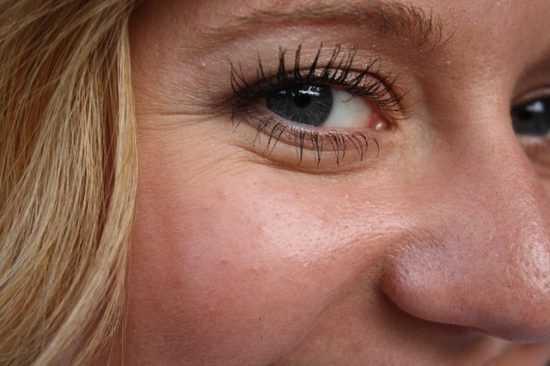 Морщины возле глаз